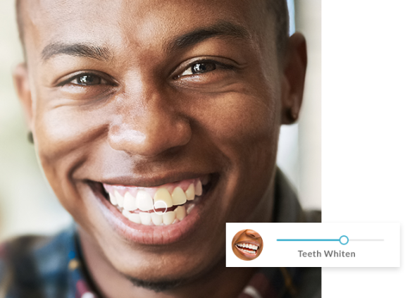 guy smiling with white teeth